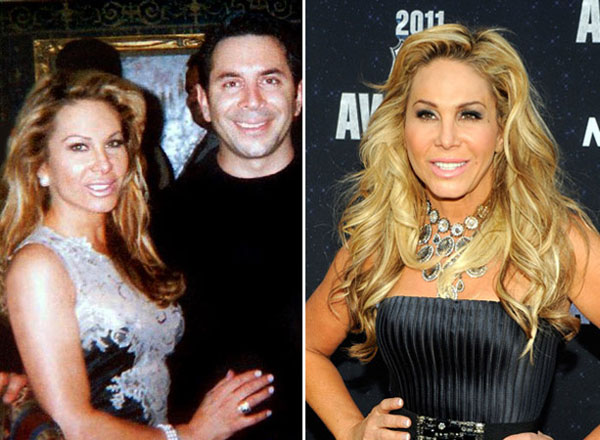 Adrienne Maloof Plastic Surgery Before & After