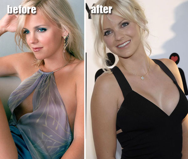 Anna Faris Before & After Plastic Surgery