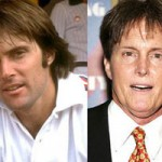 Bruce Jenner Plastic Surgery Before & After Photos