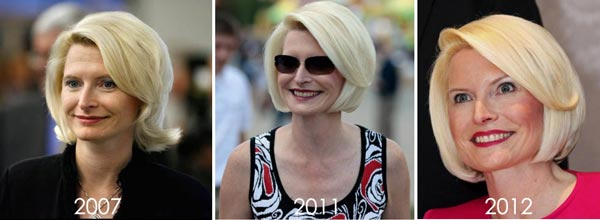 Callista Gingrich Before & After Plastic Surgery
