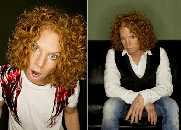 Carrot Top After Plastic Surgery