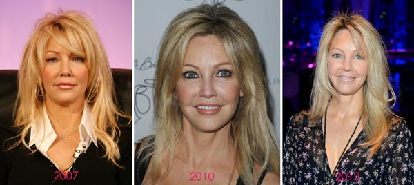 Heather Locklear Before & After Plastic Surgery