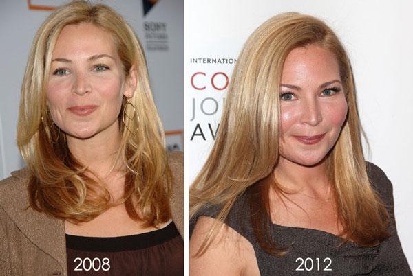 Jennifer Westfeldt Plastic Surgery Before & After