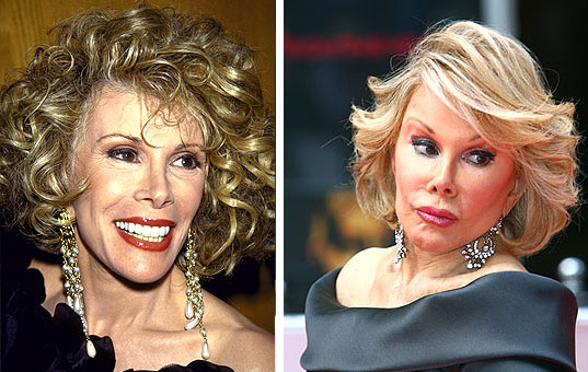 Joan Rivers Before & After Picture