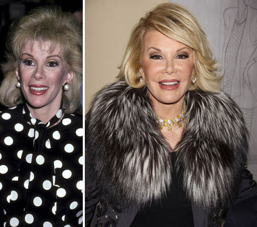 Joan Rivers Before & After Plastic Surgery