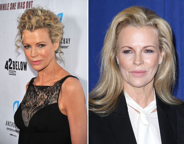 Kim Basinger Plastic Surgery Before & After