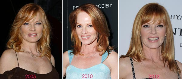 Marg Helgenberger Before & After Plastic Surgery