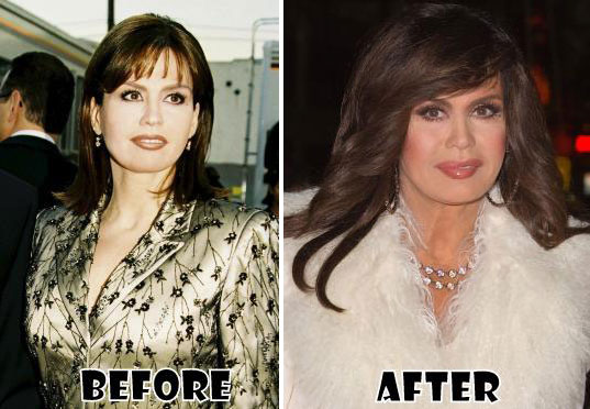 Marie Osmond Before & After Plastic Surgery
