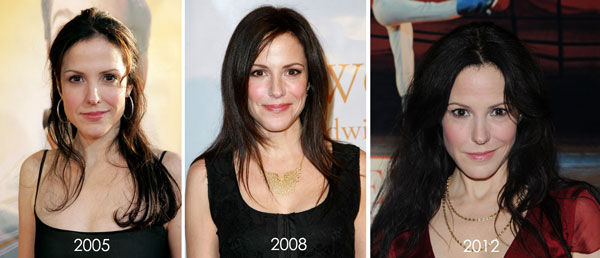 Mary Louise Parker Before & After Plastic Surgery