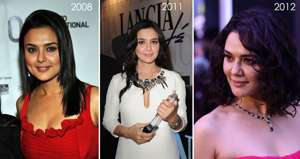 Preity Zinta Before & After Plastic Surgery