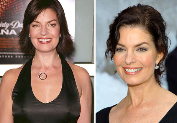 Sela Ward Plastic Surgery Before & After