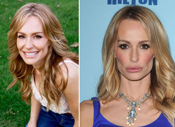 Taylor Armstrong Before & After Plastic Surgery