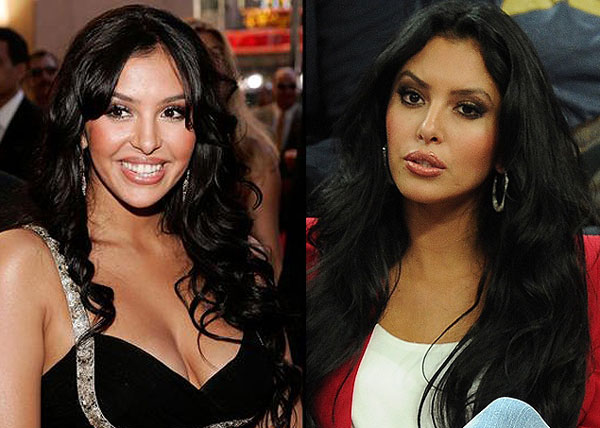 Vanessa Bryant Plastic Surgery Before& After