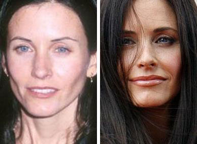 Courteney Cox Lips Augmentation