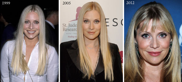 Emily Procter Before & After Plastic Surgery