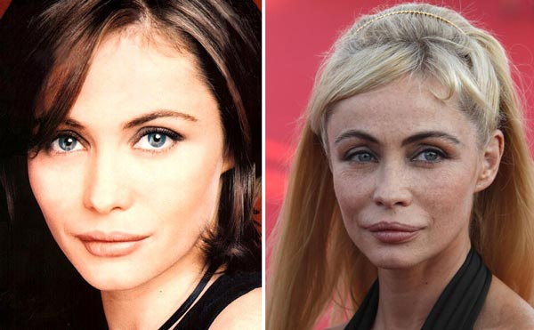 Emmanuelle Beart Plastic Surgery Before & After