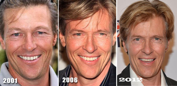Jack Wagner Plastic Surgery Before & After