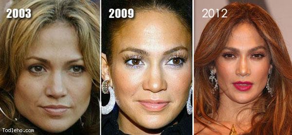 Jennifer Lopez Plastic Surgery Before & After