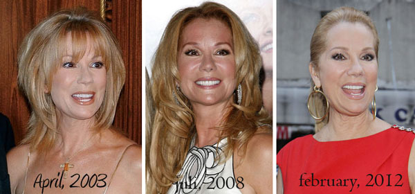 Kathie Lee Gifford Plastic Surgery Before & After