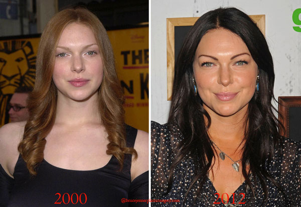 Laura Prepon Plastic Surgery Before & After