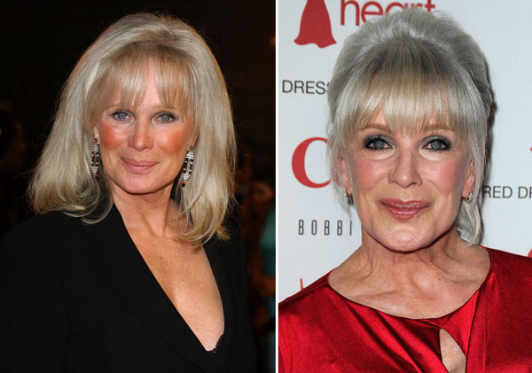 Linda Evans Plastic Surgery Before & After
