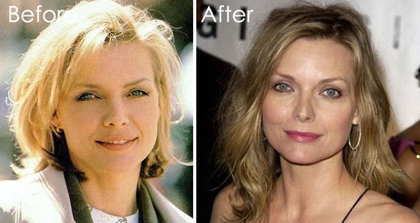Michelle Pfeiffer Nose Job