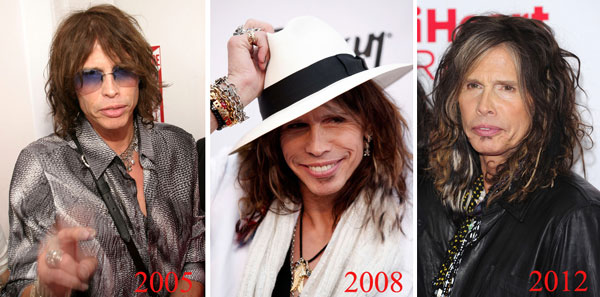 Steven Tyler Plastic Surgery Before & After