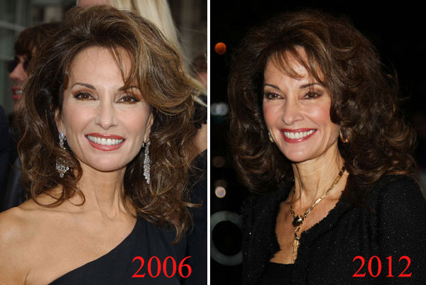 Susan Lucci Plastic Surgery Before & After