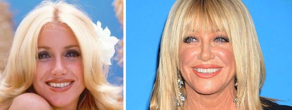 Suzanne Somers Plastic Surgery Before & After