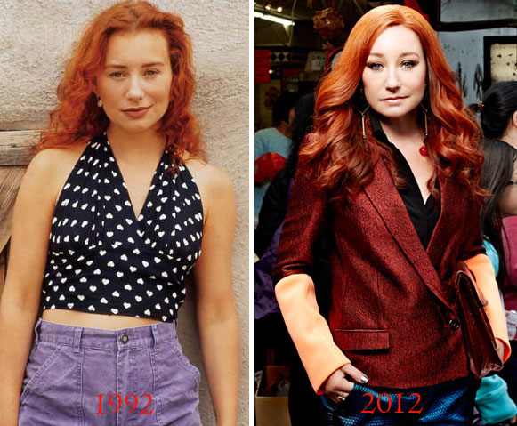 Tori Amos Before & After Plastic Surgery
