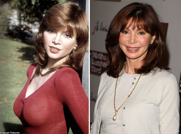 Victoria Principal Plastic Surgery Before & After