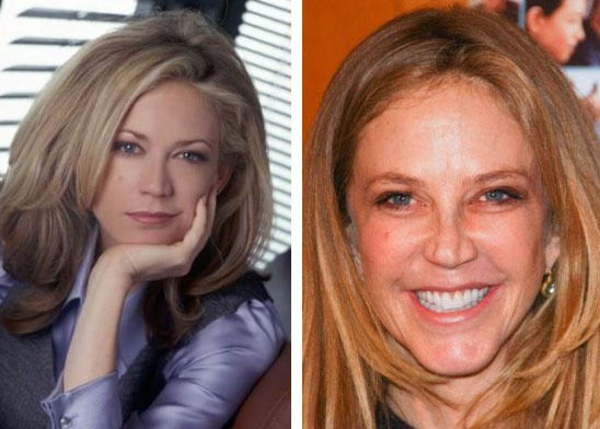 Ally Walker Before & After Plastic Surgery