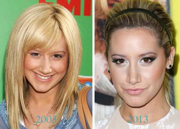 Ashley Tisdale Before & After Nose Job