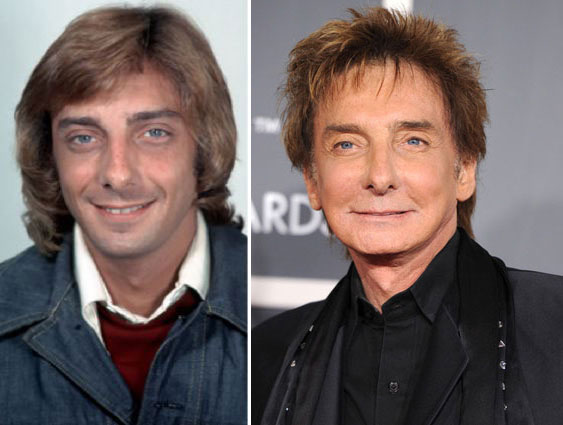 Barry Manilow Before & After Plastic Surgery