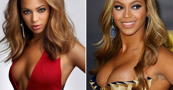 Beyonce Knowles Before & After Breast Augmentation