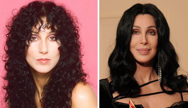 Cher Before & After Plastic surgery