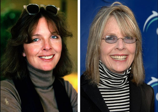 Diane Keaton Before & After Plastic Surgery