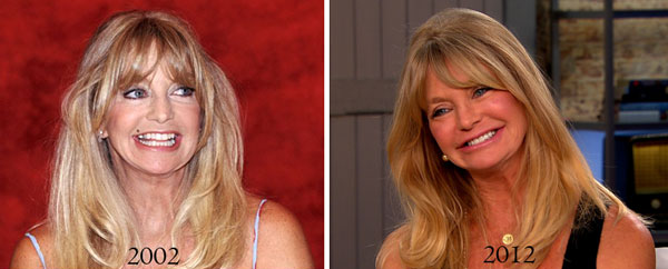 Goldie Hawn Before & After Plastic Surgery