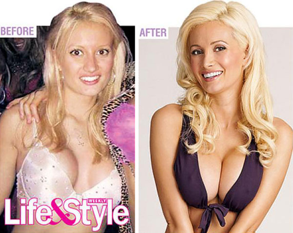 Holly Madison Before & After Plastic Surgery Photo
