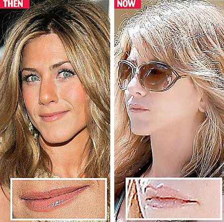 Jennifer Aniston Lips Injection Before & After