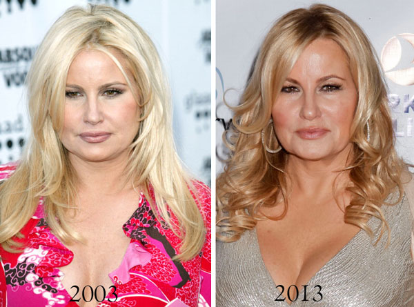 Jennifer Coolidge Before & After Plastic Surgery