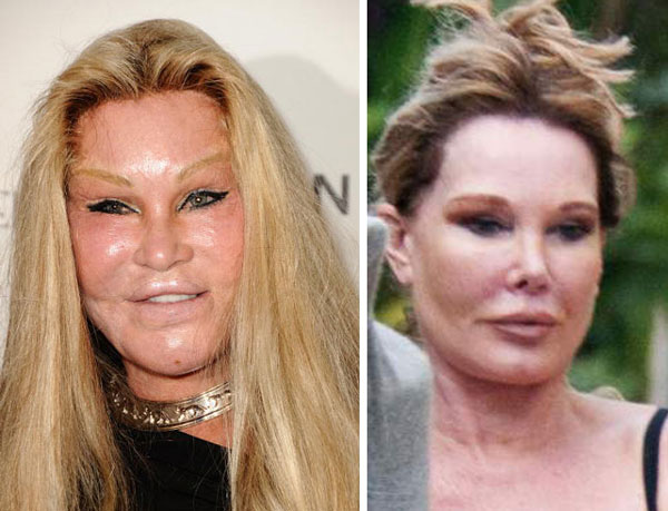 "Jocelyn Wildenstein ""Cat Woman"" Before & After Plastic Surgery"