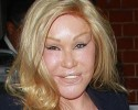 "Jocelyn Wildenstein ""Cat Woman"" Plastic Surgery"