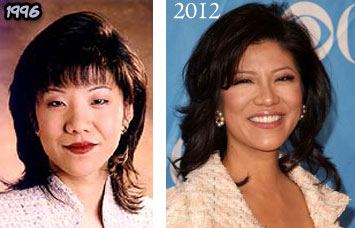 Julie Chen Before & After Plastic Surgery