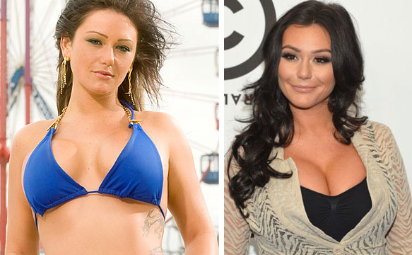 Jwoww Boob Job Before & After
