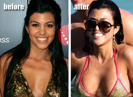 Kourtney Kardashian Boob Job