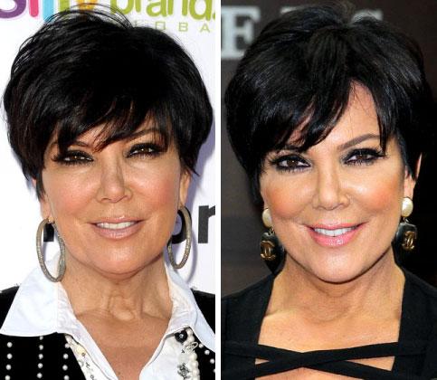 Kris Jenner Before & After Facelift