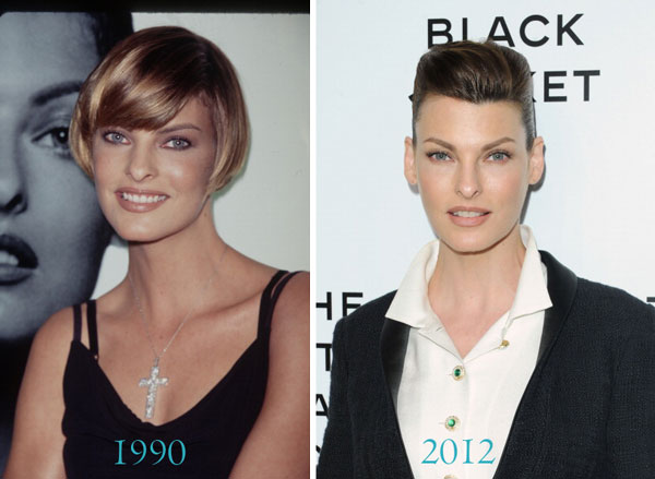Linda Evangelista Before & After Plastic Surgery
