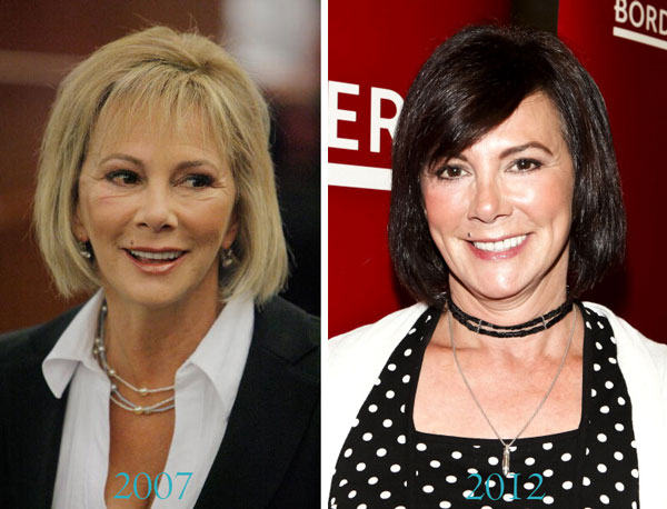 Marcia Clark Before & after Plastic Surgery