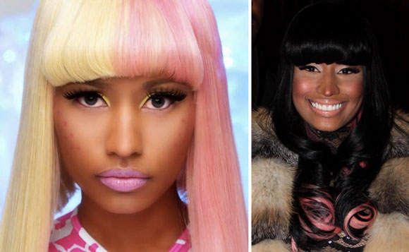 Nicki Minaj Cheek Implant & Nose Job
